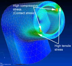 FEA Contact Analysis of Biomedical Device for SRA Developments